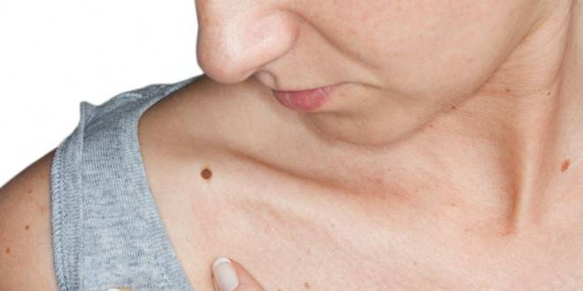Cáncer de piel: consejos y cuidados para detectar a tiempo esta enfermedad
