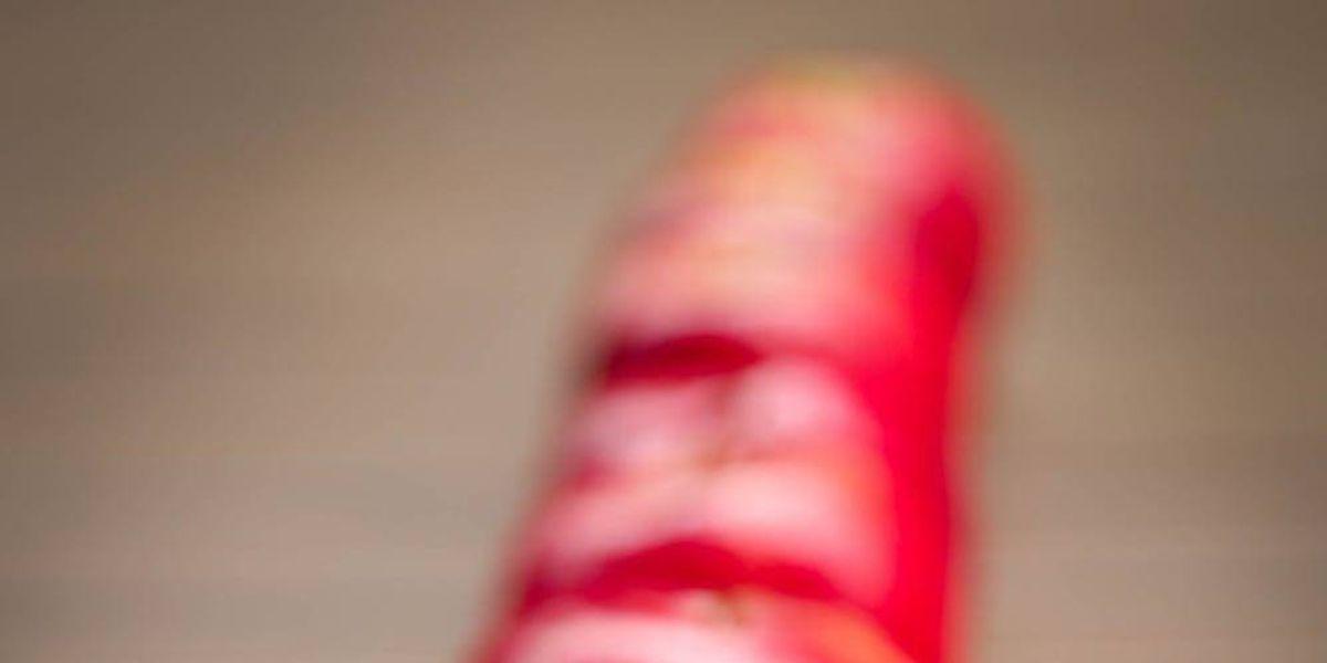 5 remedios caseros contra la acidez