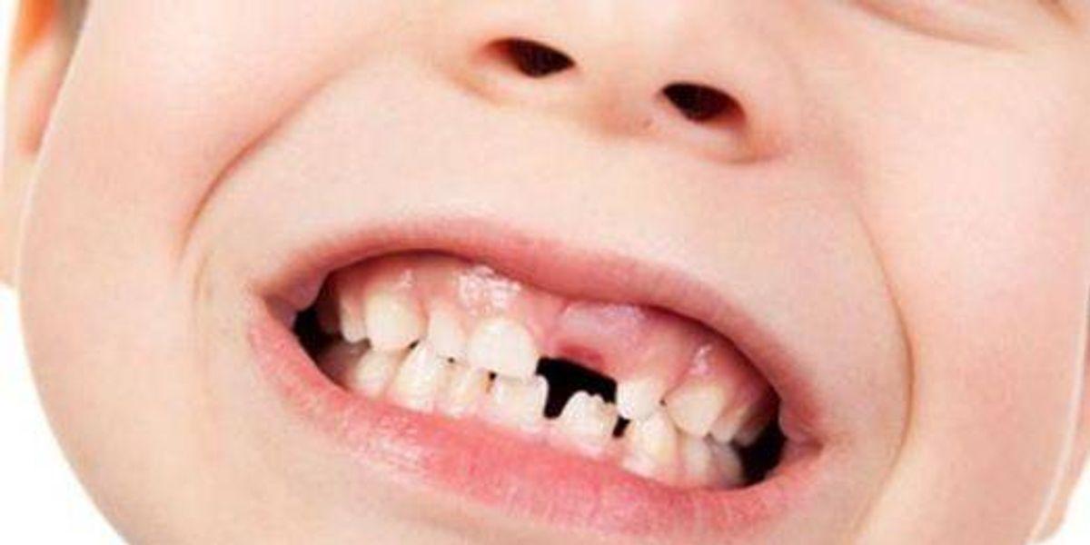 Estudio concluye que los dientes de leche pueden curar enfermedades