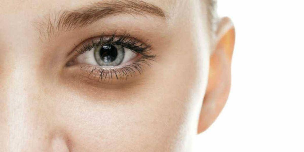 Tres ingredientes que te ayudarán a desaparecer tus ojeras