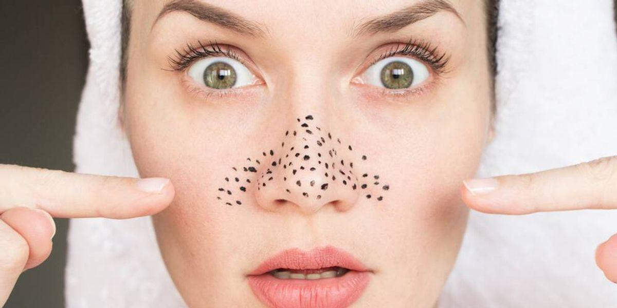 4 formas de eliminar los desagradables puntos negros de la cara