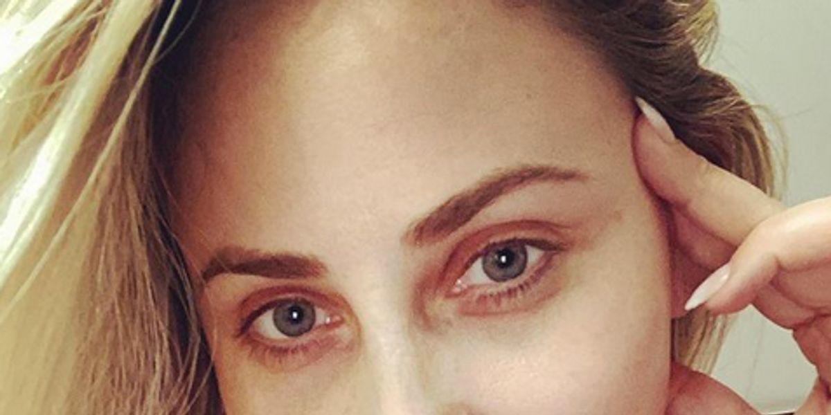 Gissella Gallardo muestra los resultados en su rostro tras aplicación de bótox