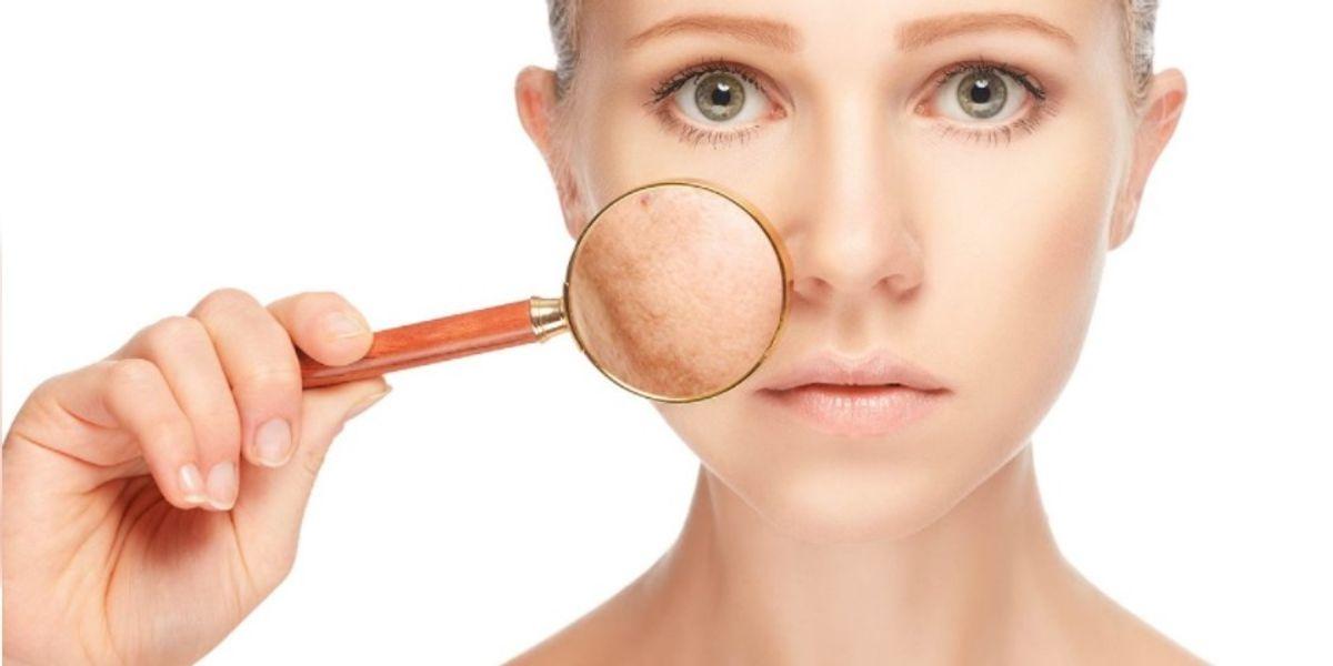 El invierno es la época ideal para eliminar las manchas de la piel