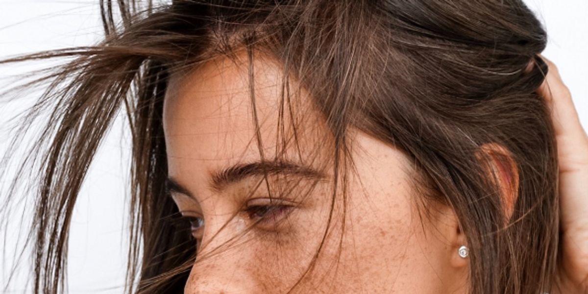 Manchas en la piel o pecas: ¿cómo diferenciarlas?
