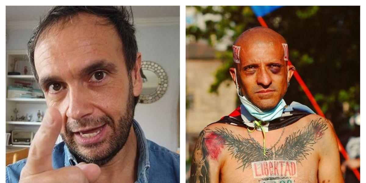 """Rodrigo Sepúlveda luego que Rojas Vade admitiera no tener cáncer: """"Es burlarse de la gente con cáncer"""""""